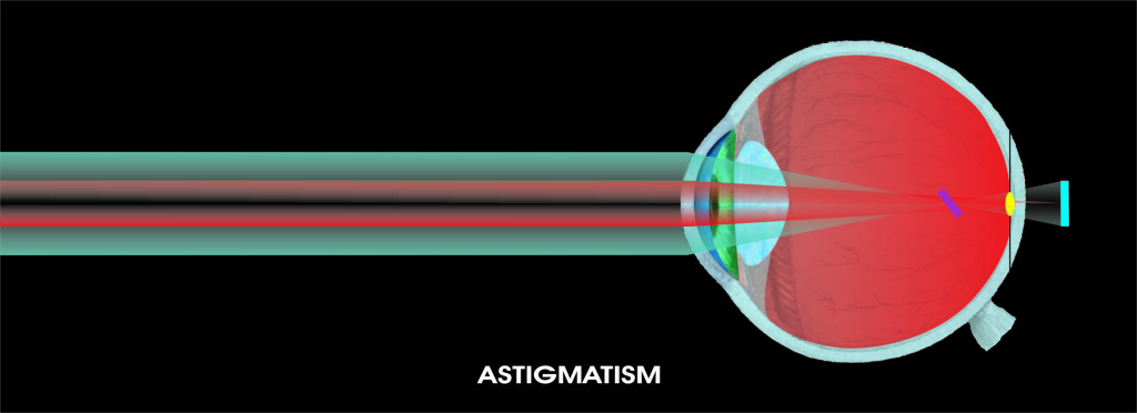 Astigmatism ochi uman