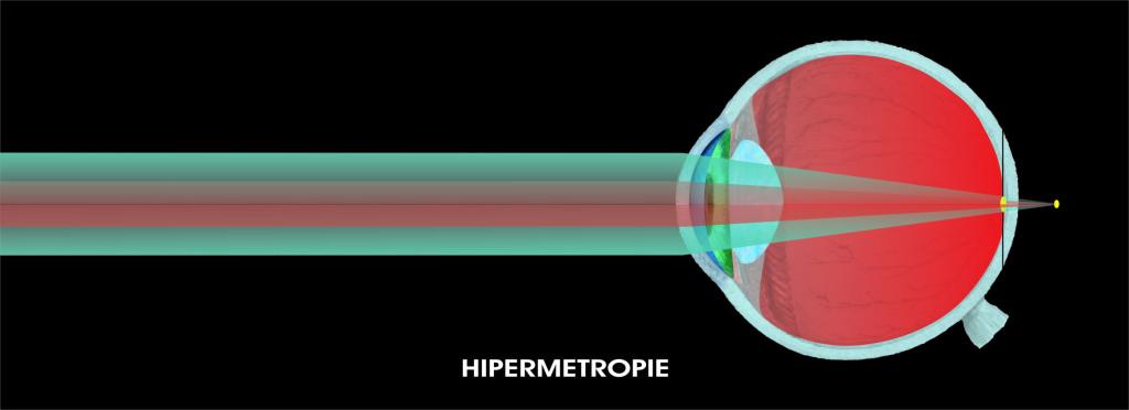 Hipermetropia ochiului
