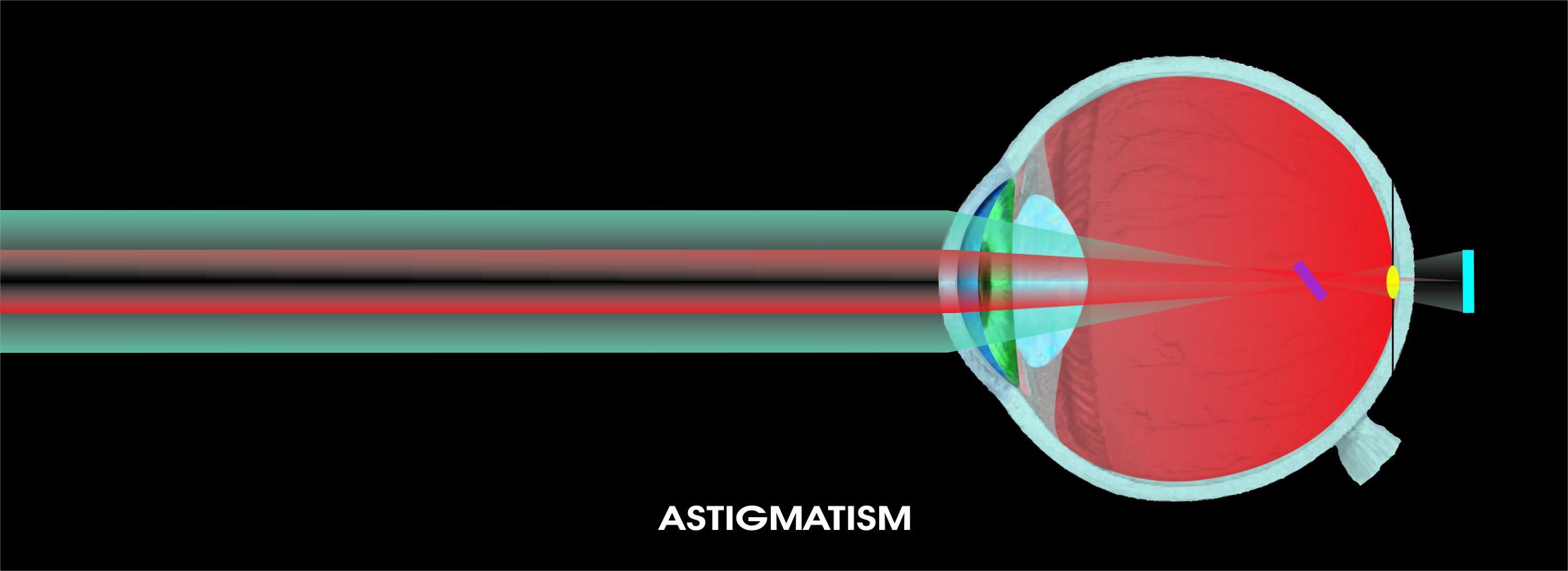 viziune slabă cu astigmatism