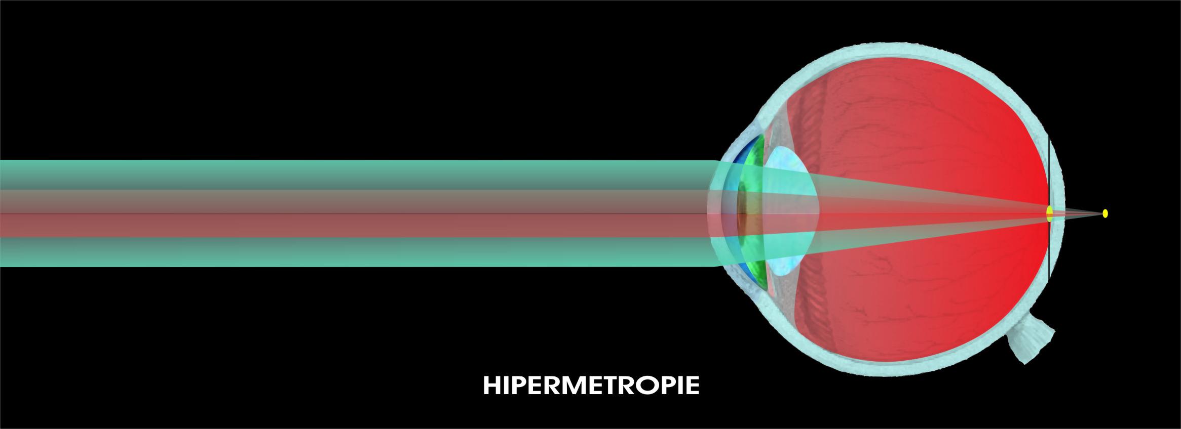 Hipermetropie picături de vitamine pentru ochi